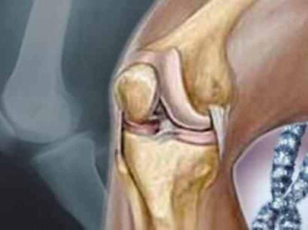 Οστικοί τραυματισμοί