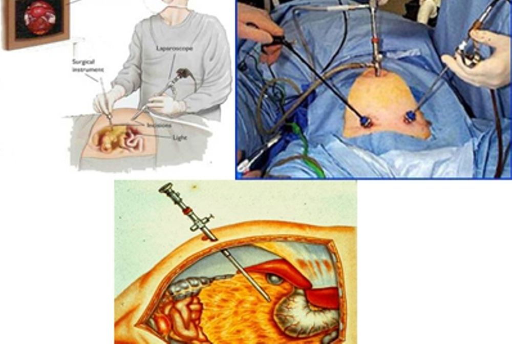 Λαπαροσκόπηση - Λαπαροσκοπική χειρουργική