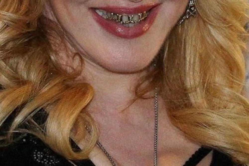 Χαμόγελο που… τρομάζει: Ποια ζάμπλουτη star γέμισε το στόμα της χρυσάφι;
