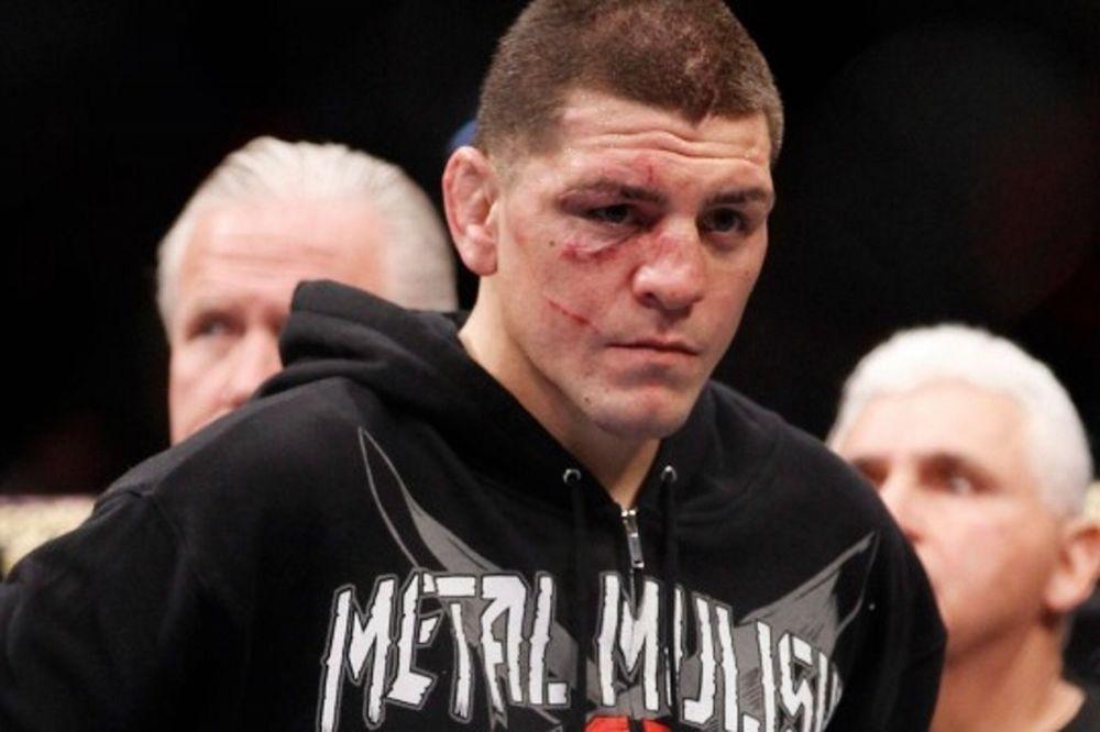 UFC 183: Στον… αέρα ο Nick Diaz