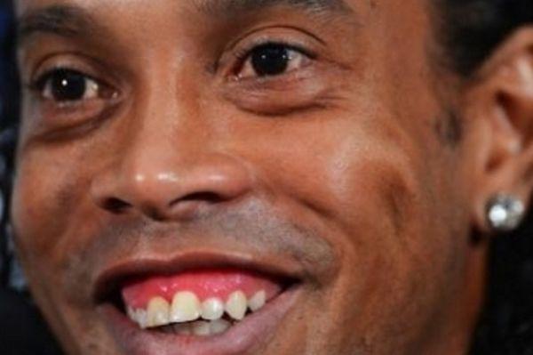 Αλλάζει... δόντια ο Ροναλντίνιο!