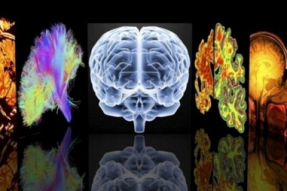 Ποιες είναι οι 3 μορφές Αλτσχάιμερ