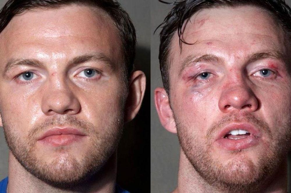 Οι μποξέρ πριν και μετά τις μπουνίες! (photos)