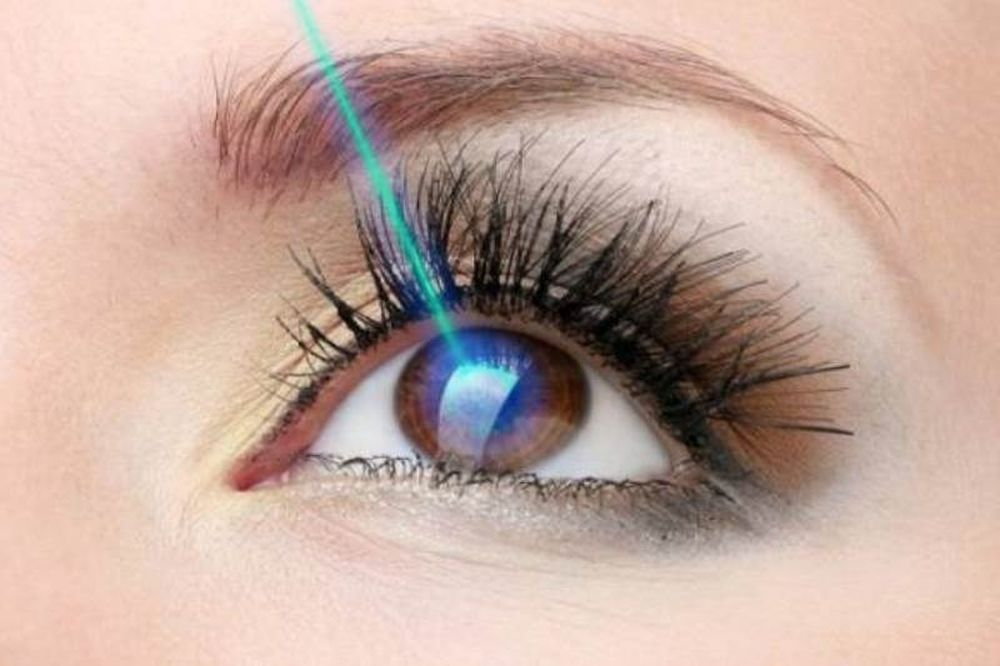 Laser στα μάτια: Πότε πρέπει να γίνεται, ποιοι δεν μπορούν να κάνουν