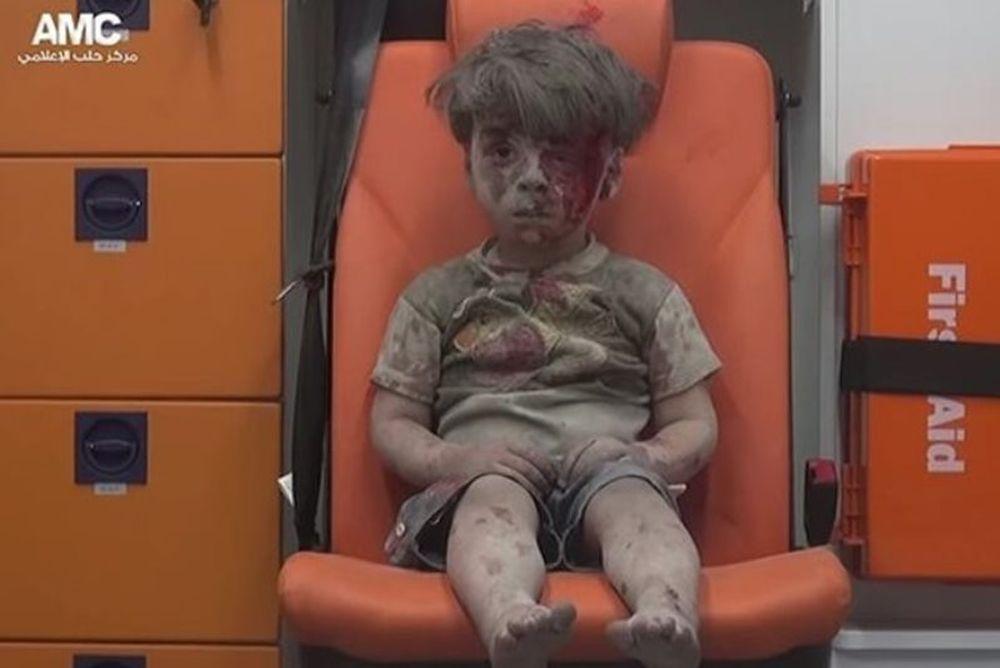 Ο εφιάλτης του εμφυλίου στο ματωμένο πρόσωπο ενός παιδιού (video)