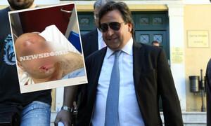 Φωτογραφίες - ΣΟΚ: Έτσι έσπαγε κεφάλια ο Βίκτωρας Ρέστης