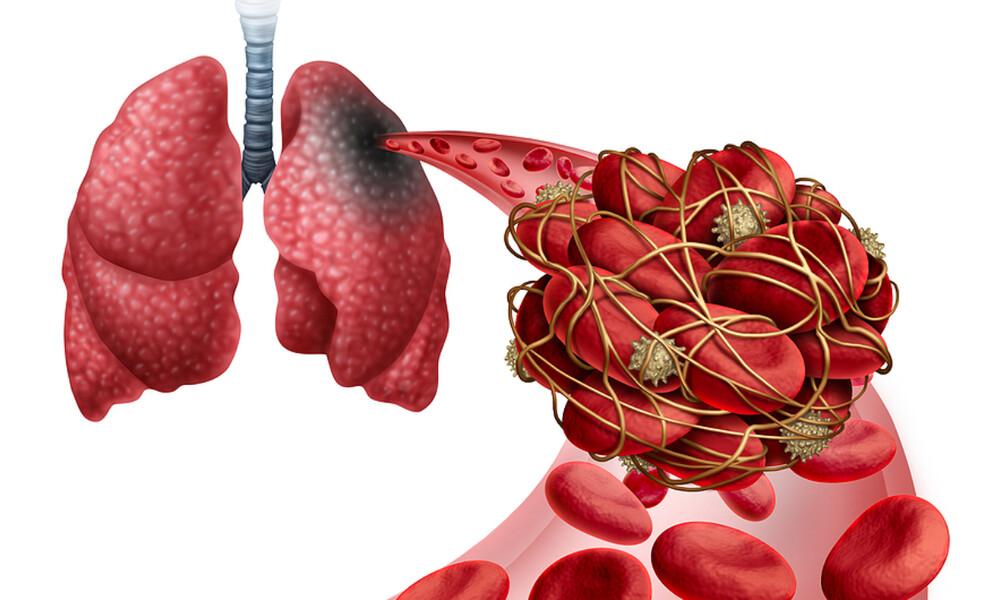 Πνευμονική εμβολή: Πότε πρέπει να αναζητήσετε επειγόντως ιατρική βοήθεια (εικόνες)