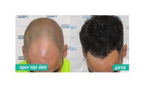 Μεταμόσχευση μαλλιών: Όλα όσα πρέπει να γνωρίζεις